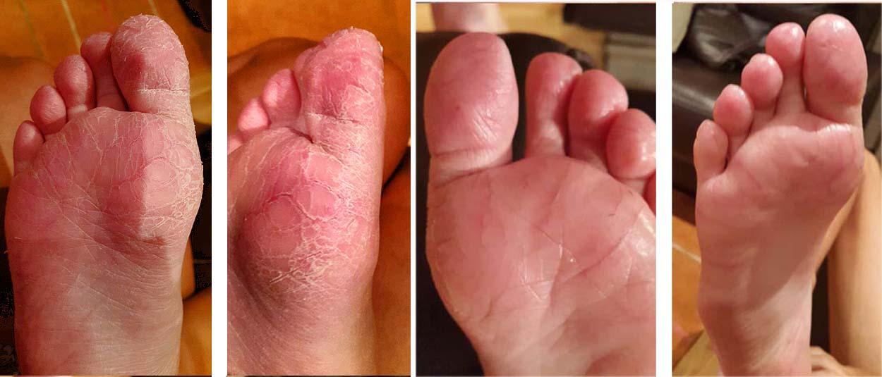 dermatitis plantar crónica curada con aloe vera