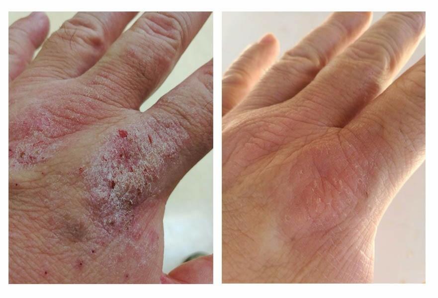 psoriasis tratada con aloe vera